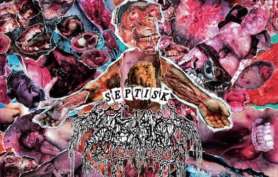 MB Premiere: SEPTAGE - 'Septisk Eradikasyon' full album stream